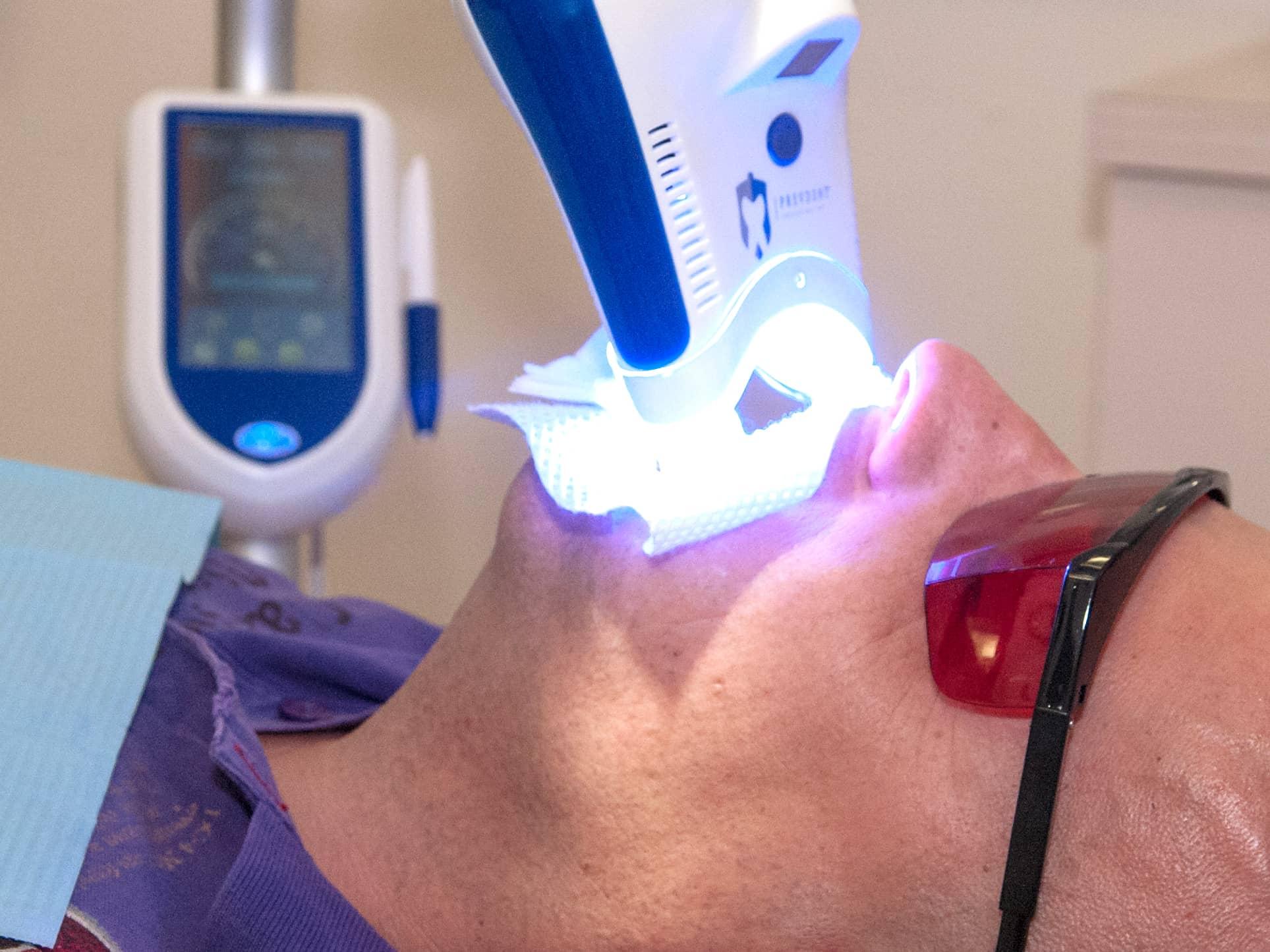 Tanden bleken: alleen nog bij de tandarts?